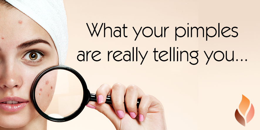 What your pimples are really telling you...